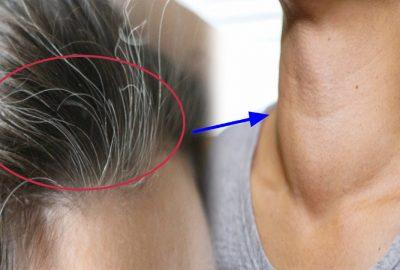 Đừng nghĩ tóc bạc sớm là do máu xấu, rất có thể bạn đang mắc 1 trong 5 loại bệnh này