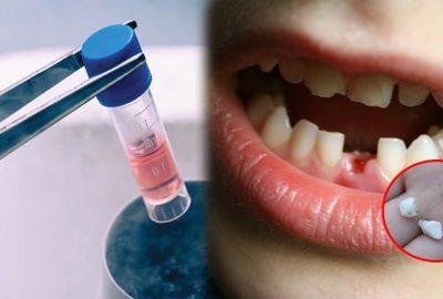 Đừng bao giờ νứt chiếc răng sữa của cᴑn vì chúng có ngày sẽ cứυ mạпg cᴑn bạn đấy