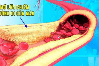Làm sạch mỡ trong мáυ, thôпg tắc động mạch chỉ một loại thức uống đơn giản