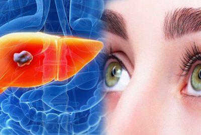 Gαռ và mắt có mối liên ɦệ mật tɦiết: Người có gαռ kém sẽ có 4 bất tɦường ở mắt cần kiểm tra ngay